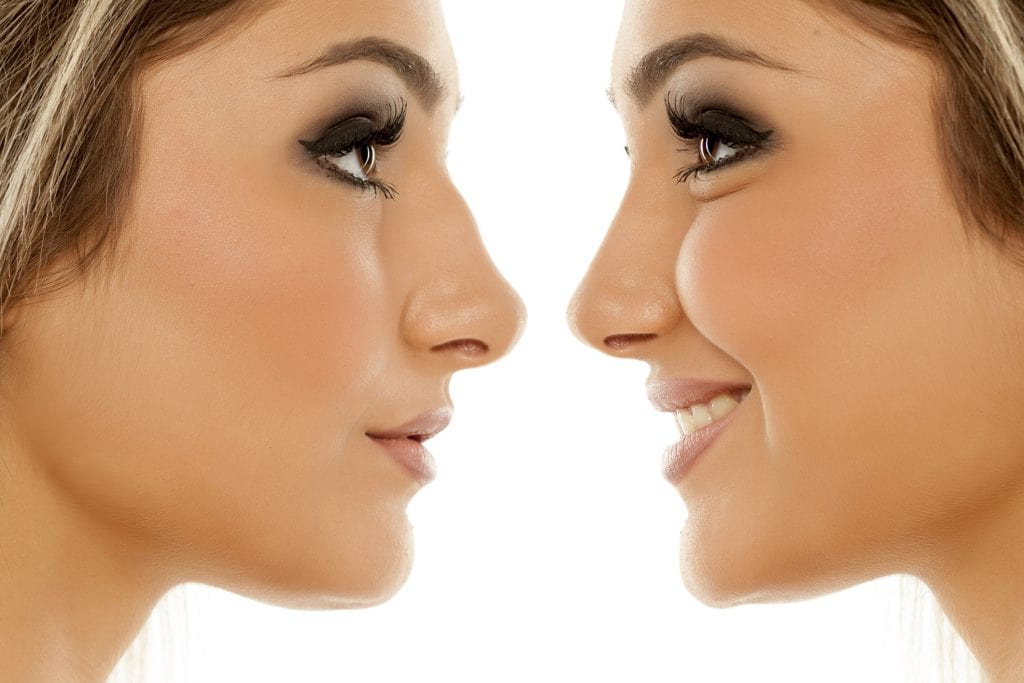 Open vs. Closed Rhinoplasty Technique: Which one is best?